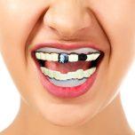 Pirat tänder